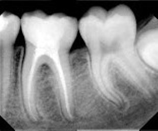 Endodoncia Molina Caries Periapical Ray Of Teeth